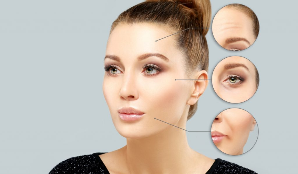 This picture shows how botox injections can help remove wrinkles of the forehead, eyes and lips.